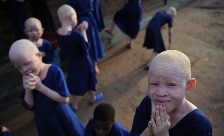 AFRIQUE. L'insatiable chasse meurtrière aux albinos